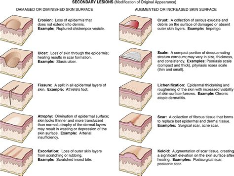 pattern analysis of skin lesions alterations in the integumentary system basicmedical key
