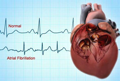 atrial fibrillation diagram atrial fibrillation test pictures symptoms causes