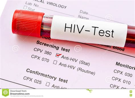 Tes Hiv Tester Hiv Hiv Tes Test Hiv Alat Tes Hiv Sendiri Di Rumah Terb 1 hiv test hiv infection screening test form stock photo image 77464129