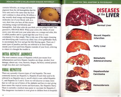 Liver Detox Symptoms Anxiety by O M G Anxiety Depression While Cleansing At Liver