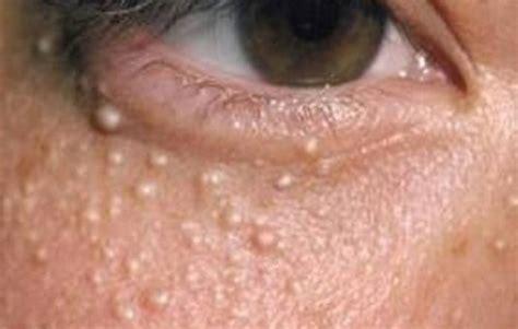 jerawat  bawah mata bisa jadi milia