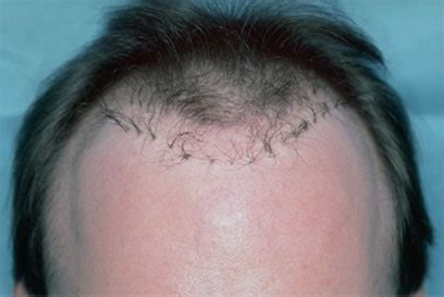 bad hair transplants hair transplant repair techniques bernstein medical