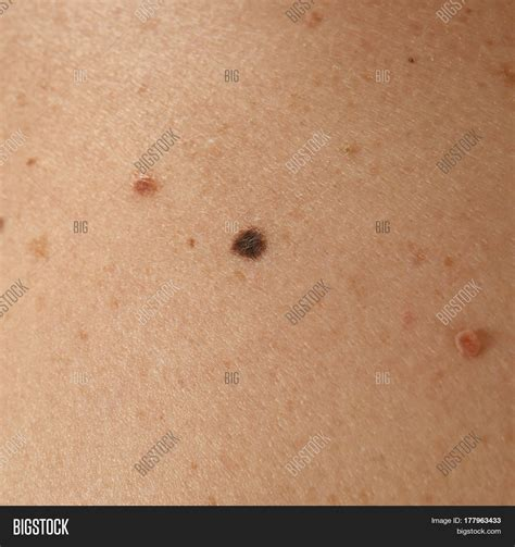 human skin stock photo 169 chaoss 1695911 human skin with birthmarks closeup stock photo stock images bigstock