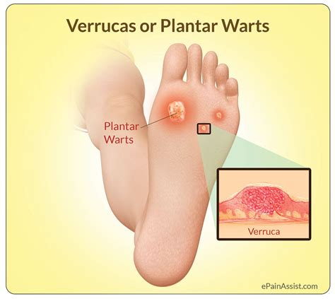 What Causes A Planters Wart by Verrucas Or Plantar Warts Causes Symptoms Treatment