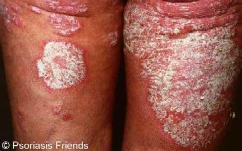 bruciore interno coscia psoriasi