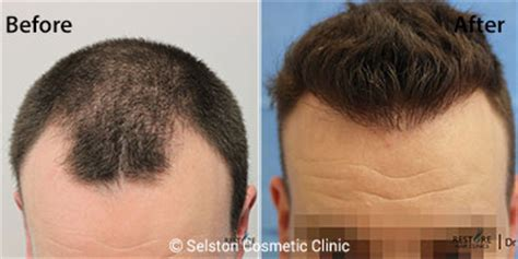 does fue hair transplant work fue ufue hair transplant hair restoration midlands