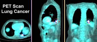 diagnostic test   early detection  lung cancer dr robert  nagourney rational