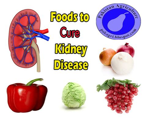 Foods To Help Detox Kidneys by Archives Chipstoday