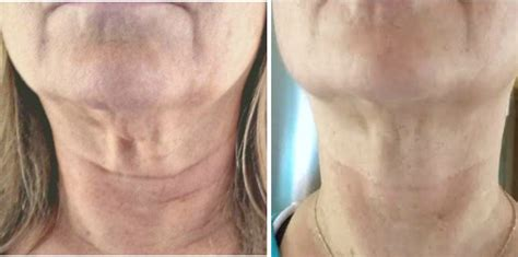 increase the width of neck and tighten saggy neck skin