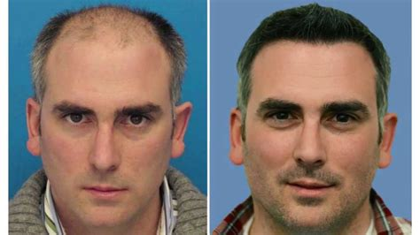 best hairtransplant in the world hair transplant mind blowing results youtube