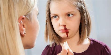 Nasenbluten Ver 246 Den Was Passiert Da Genau