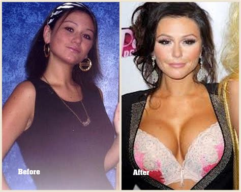 jenni jwoww before and after plastic surgery breast jwoww plastic surgery before and after photos 2013 2014