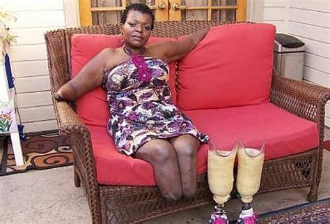 bel sedere uomo niente barriere voleva un bel sedere ha perso gambe e