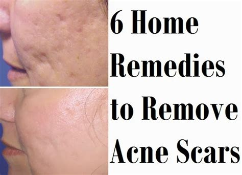 how to cure the acne how to clear acne scars home