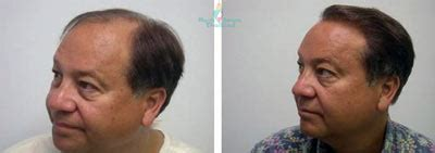 hair transplant pricelist in thailand hair transplants in bangkok hair restoration in thailand