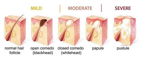 how to pop a pubic ingrown pics understanding the acne problem our botanicals australia