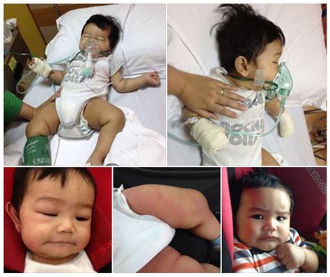 bagaimana jika anak atau bayi batuk 2 tipsbayi jaga jaga batuk yang berterusan mungkin adalah petanda