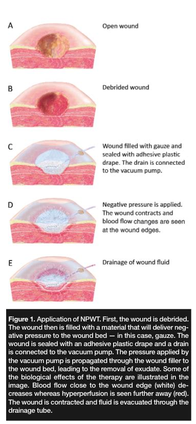 Bed Drape Individualizing The Use Of Negative Pressure Wound Therapy
