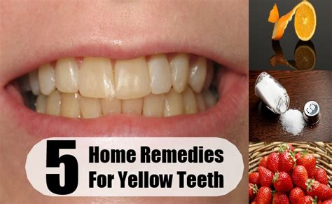 5 top home remedies for yellow teeth treatments