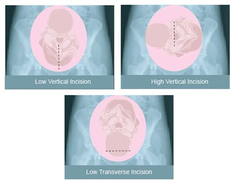 types of cesarean section vbac vaginal birth after cesarean classical transverse