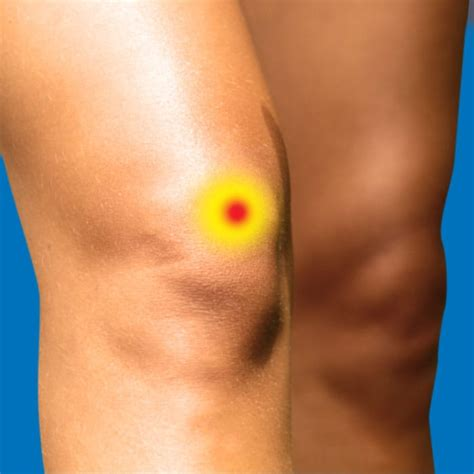 torn acl symptoms acl tear relieve foot leg