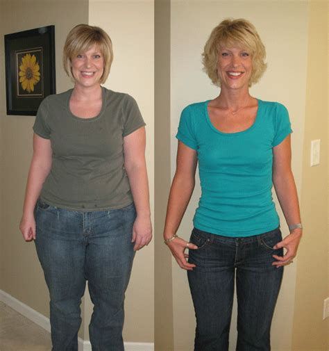 weight loss surgery my gastric band nearly killed me bariatric surgery enriches how old you are regarding