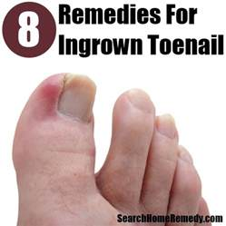 home remedies for ingrown toenail how to treat ingrown toenail best home remedies for