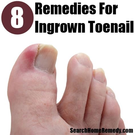 home remedies ingrown toenail