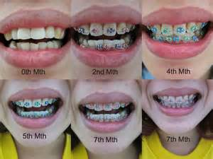 best color for braces blue braces for teeth surgery pics