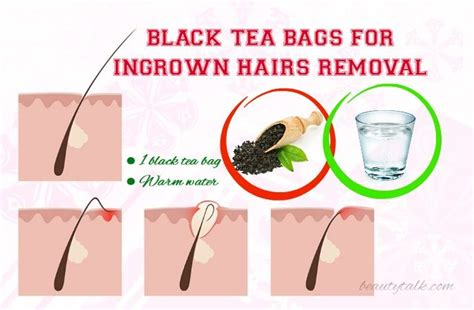 essential oil for ingrown hair 25 best ideas about ingrown hairs on pinterest ingrown