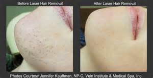 does laser hair removal scar face om hair