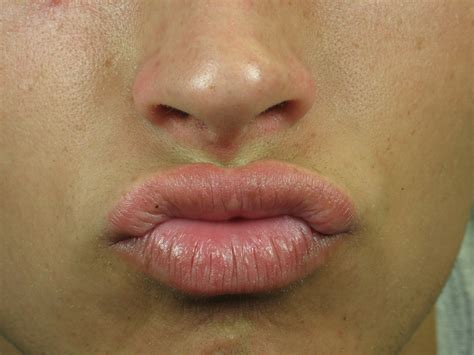 wart on lip after laser treatment