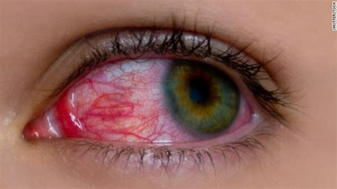 Can Conjunctivitis Cause Blindness eye disease uveitis can blind if not early cnn