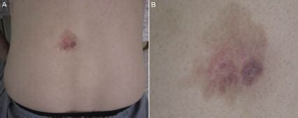 ectopic extramammary paget's disease: case report and