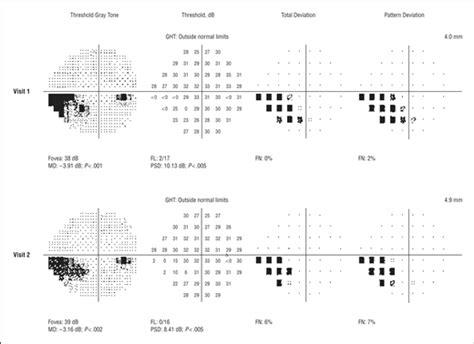 psd pattern standard deviation total deviation probability plots for stimulus size v