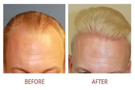 rolando model hair transplant testimonials reviews about hair transplant before and after pictures