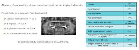 Prix Cabinet Dentaire by Dentifree L Implant Dentaire Pas Cher 224 Bordeaux Le
