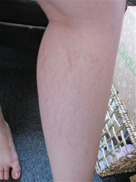 Bio Stretch Marks bio our thoughts