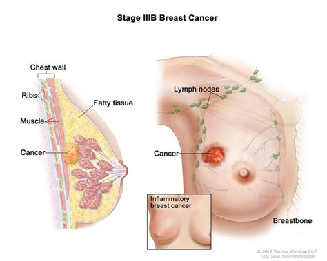 breast cancer breast cancer during pregnancy pdq 174 patient version
