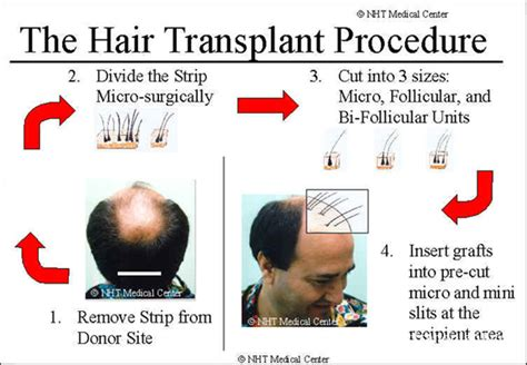 Hair Transplant Types The Best One by Hair Transplant Procedure Hair Transplant