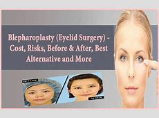 Blepharoplasty (Eyelid Surgery) - Cost, Risks, Before ... Home Treatment For Baggy Eyes