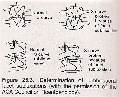 chapter 18 basic spinal subluxation considerations chiro roentgenologic considerations