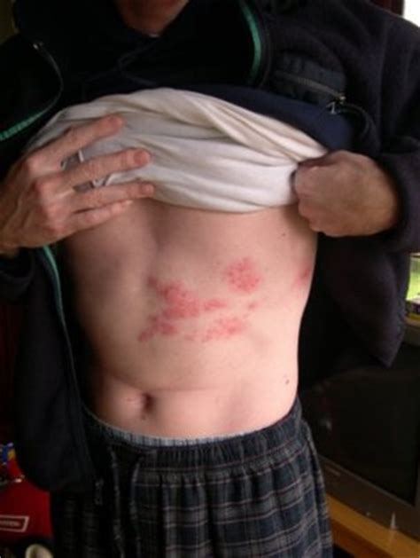 what do shingles look like......pictures and information