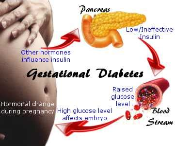 gestational diabetes c section gestational diabetes shen therapies