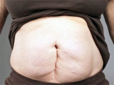 Flabby Tummy After C Section by What Happens When You A Condition Called Diastasis