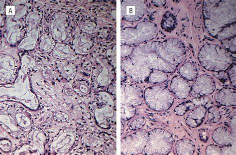 Sialometaplasia Pathology Outlines pathology outlines necrotizing sialometaplasia