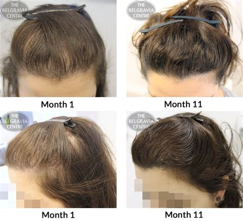 hair styles for foward hair growth pattern female pattern baldness hairstyles hairstyles