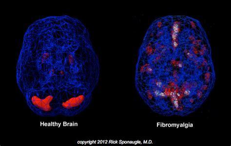 Fibromyalgia Cymbalta Rapid Detox by Fibromyalgia Treatment Florida Detox Rapid Detox