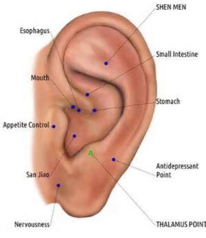 Types Of Headaches Location Cluster Headache Location