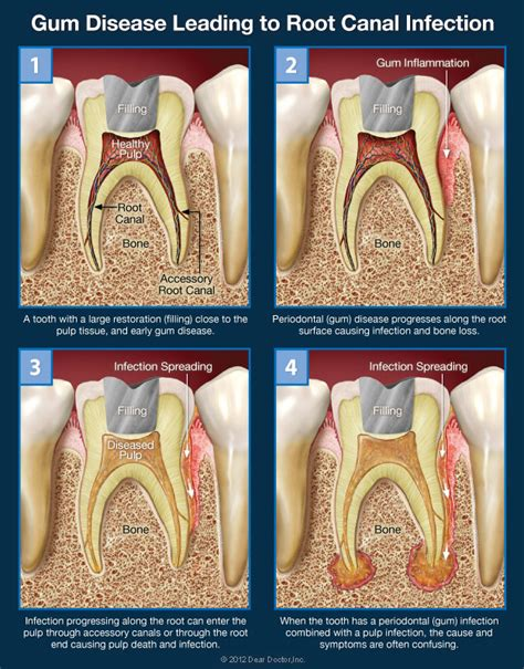 diy root canal steps gum disease leading to root canal infection image